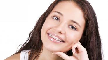 Mikor időszerű a fogszabályozás?